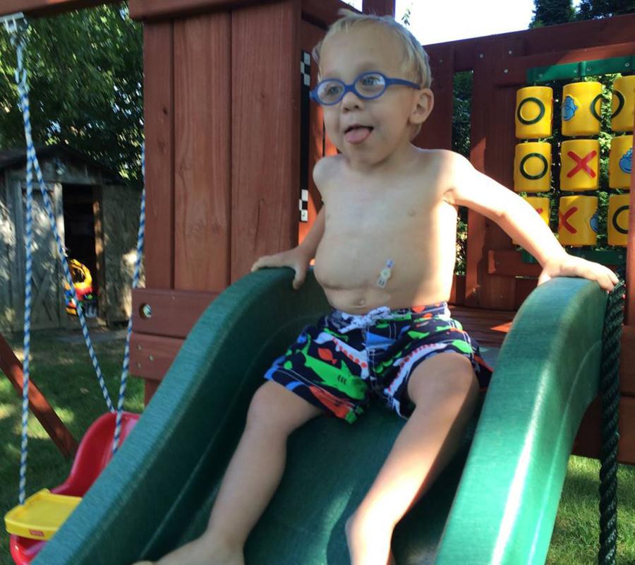 Reids Minione Balloon Button Success Story Applied Medical