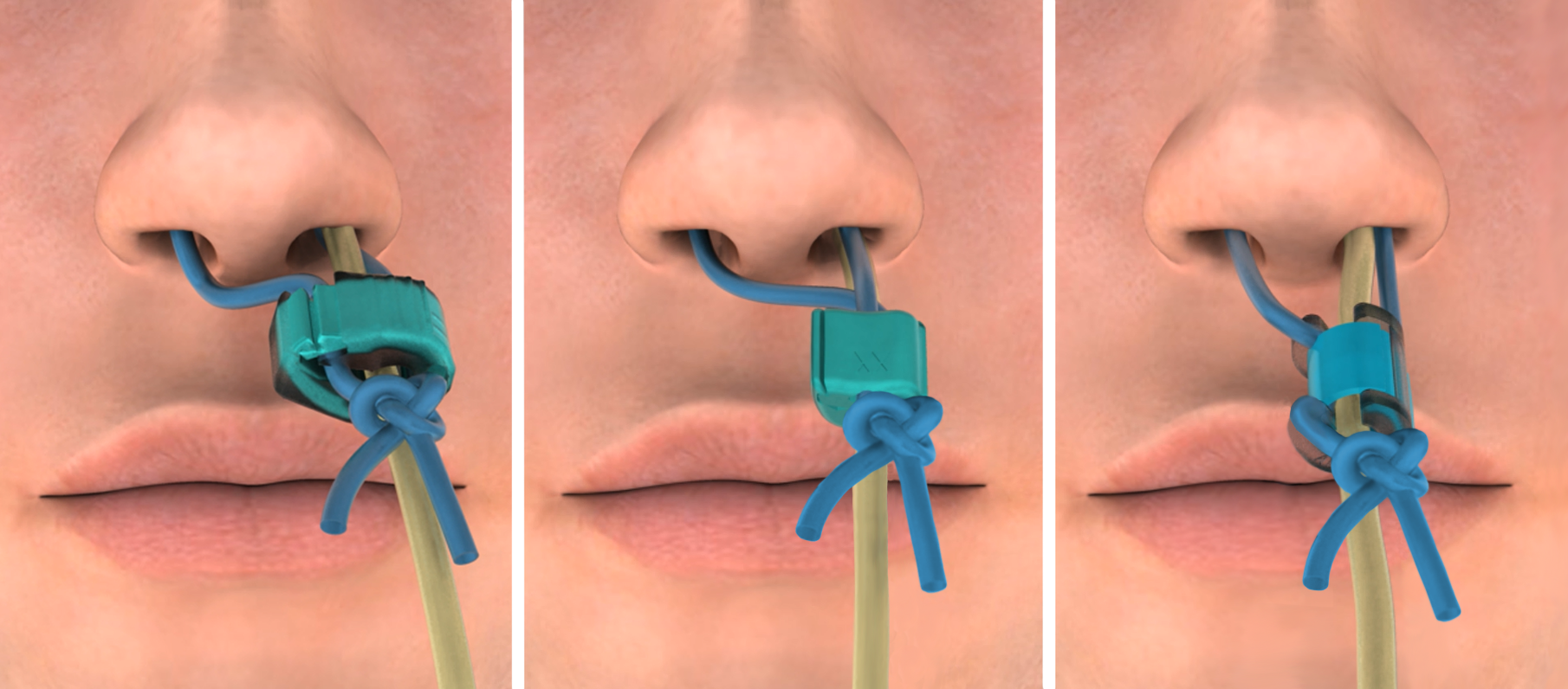 Adult Clips Tube amt bridle™ family | nasal tube retaining systems, nasal bridle
